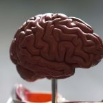 Dementie deel 1; Anamnese en aanvullend onderzoek