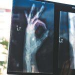 H&W – LESA Radiologie – Juni 2021